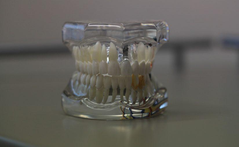 Zła metoda odżywiania się to większe ubytki w jamie ustnej natomiast również ich utratę